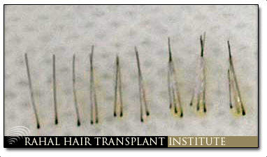 fue hair transplant ottawa
