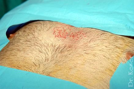 body hair transplant dr keser ankara turkey