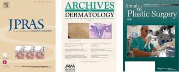 dr umar hair transplant publications