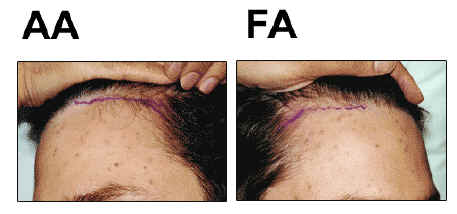 person to person hair transplant trial
