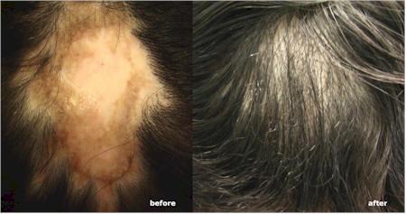 dr umar lupus hair transplant patient