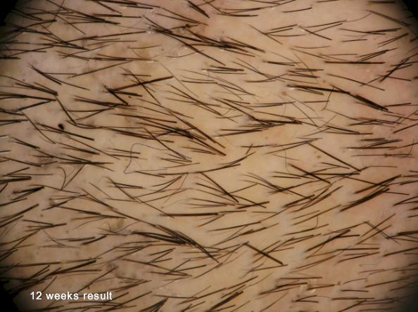 Histogen hair stimulating complex HSC 12 weeks photo